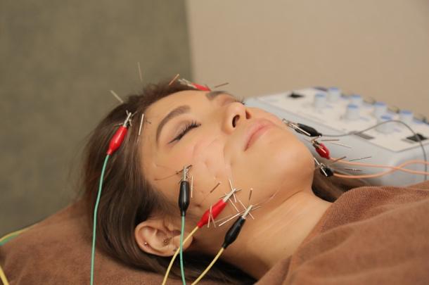 電気と鍼のダブル刺激でさらなる美容効果